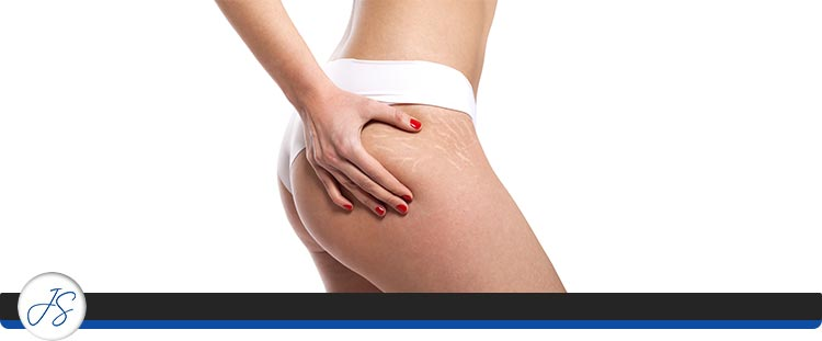 Stretch Mark Camouflage Treatment Near Me in Middleburg Heights, OH